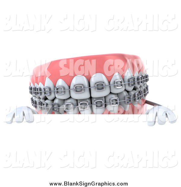 Illustration of a 3d Metal Mouth Braces Teeth Character over a Sign